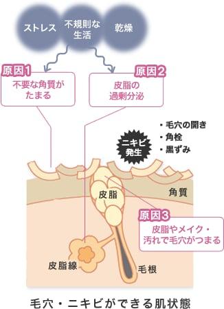 ストレス・不規則な生活・乾燥 原因1不要な角質がたまる 原因2皮脂の過剰分泌 原因3皮脂やメイク・汚れで毛穴がつまる ニキビ発生・毛穴の開き・角栓・黒ずみ 毛穴・ニキビができる肌状態