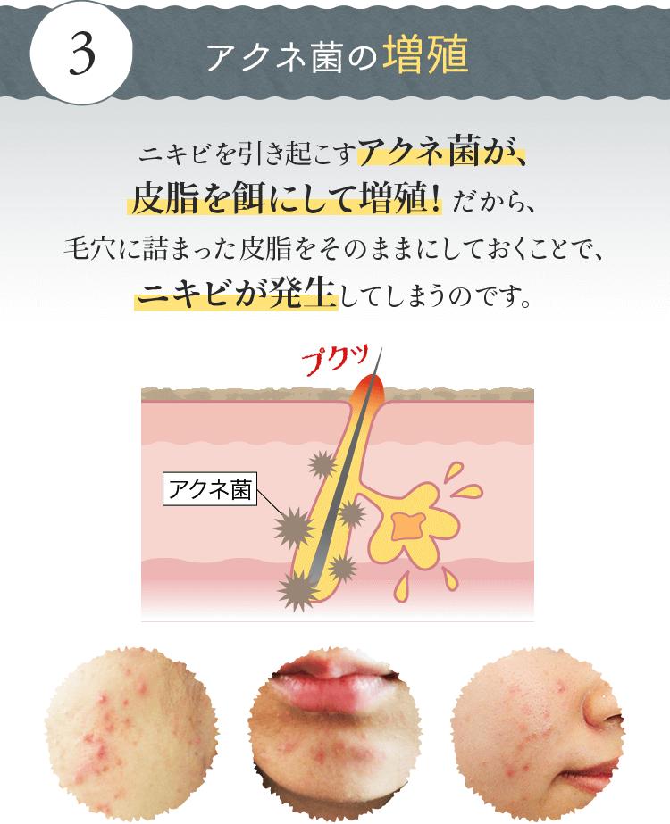アクネ菌の増殖 ニキビを引き起こすアクネ菌が、皮脂を餌にして増殖! だから、毛穴に詰まった皮脂をそのままにしておくことで、ニキビが発生してしまうのです。
